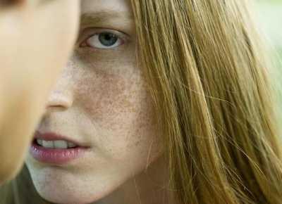 怎樣去除黑斑 如何去除臉上的黑色斑點