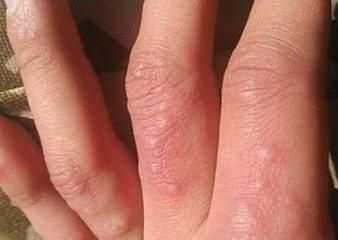 怎樣治療手部濕疹 手上濕疹應該怎么治療3大禁忌食物是克星