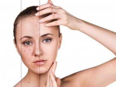 剛擠完粉刺可以洗臉嗎 聽合肥膚康是怎么說的