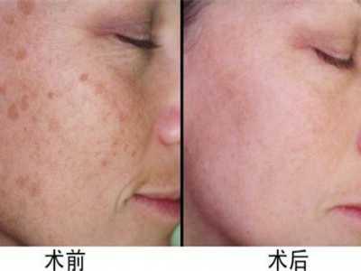 除斑偏方 老年斑的偏方消除方法