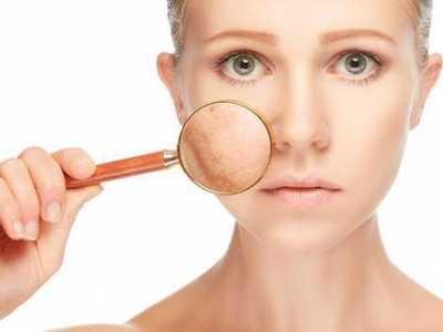 脸上毛孔粗 女人脸上的毛孔越来越粗大是怎么回事